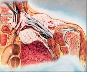 Pancoast Tumor - Physiopedia, universal access to physiotherapy ...