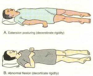 hypertonicity vs spasticity - physiopedia, universal access to, Skeleton