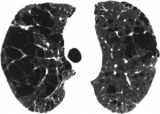 Figure-6-Advanced-destructive-emphysema-CT-scan-in-patient-with-GOLD-stage-I-COPD.png