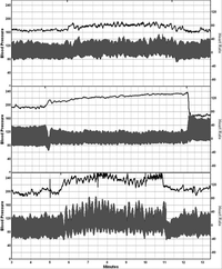 Figure 1. Examples of blood pressure and heart rate recordings from a normal subject (top panel), a patient with neuropathic POTS (middle panel), and a patient with hyperadrenergic POTS (bottom panel). In response to a tilt up position.