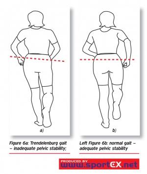 Legg Calve Perthes Disease Physiopedia