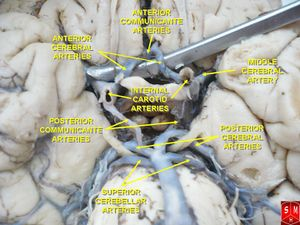 Circle of Willis 5.jpg