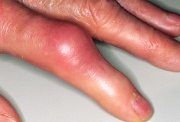 Presentation of acute gout at the PIP joint
