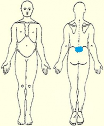 Typical body chart of patient presenting with spondylolysis