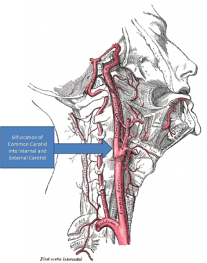473px-Gray's Anatomy with markup showing carotid artery bifurcation.png