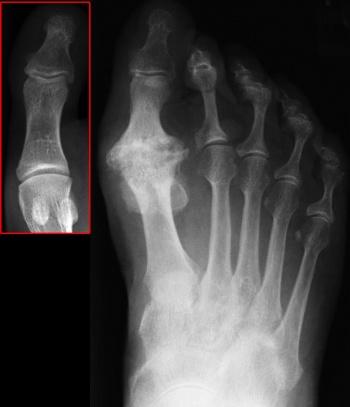 1st mtp joint osteoarthritis)