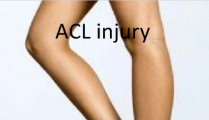ACL injury presentation slideshow title.png