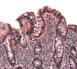 Celiac Disease (Coeliac Disease)