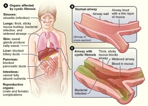 Cystic Fibrosis - Physiopedia