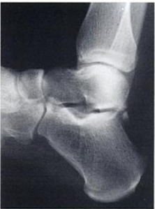 lateral x-ray of foot showing os trigonum