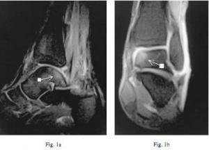 Hip Dislocation Medscape Hip Revision Recovery ~ Elsavadorla