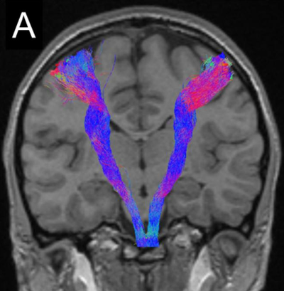 Corticospinal tract tractography reconstruction.png