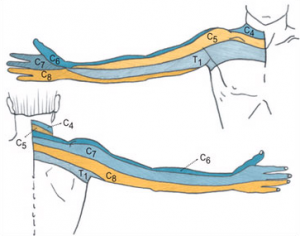 Cervical Radiculopathy - Physiopedia