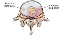 Disc Herniation - Physiopedia