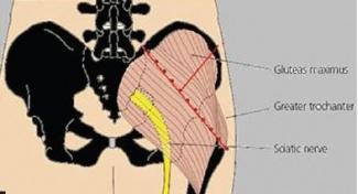 Sciatic Nerve Injury - Physiopedia