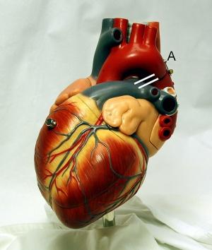 Physical Activity and Cardiovascular Disease