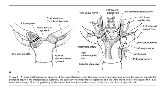 Figure adapted from: Higginbotham TO, Kuhn JE. Atraumatic disorders of the sternoclavicular joint. Journal of the American Academy of Orthopaedic Surgeons. 2005;13:138-145.