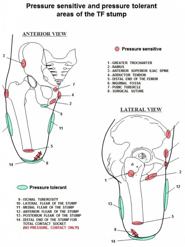 Prosthetics Physiopedia