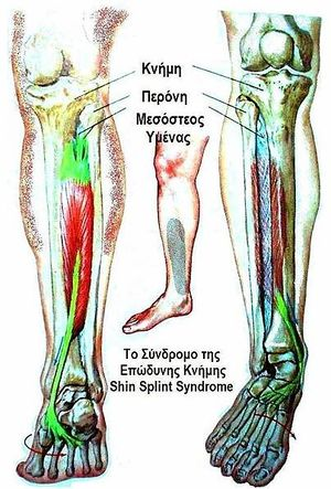 Shin Splints Physiopedia