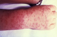 Rash associated with Rocky Mountain Spotted Fever. Image can be found at http://commons.wikimedia.org/wiki/File:Rocky_Mountain_spotted_fever_PHIL_1962_lores.jpg