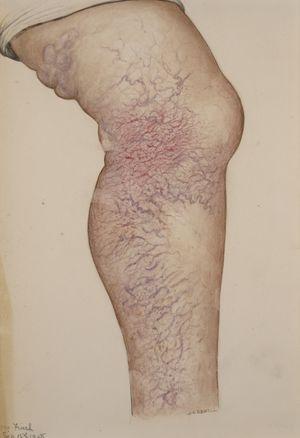 physiosparces cu vene varicoase