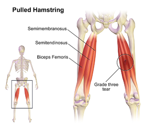 Muscle Injuries - Physiopedia