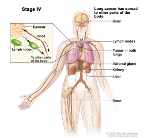 Lung Cancer - Physiopedia