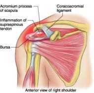 supraspinatus tendonitis - physiopedia, Skeleton