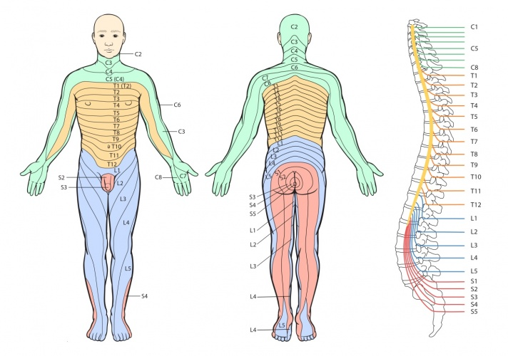 Thoracic Radiculopathy Physiopedia