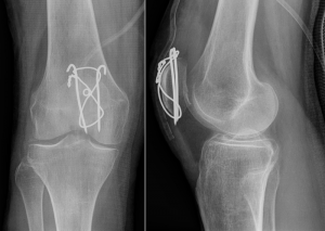 Patellar Fractures - Physiopedia