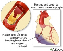 Damaged heart due to an MI