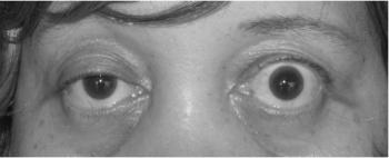 myasthenia gravis arba hipertenzija