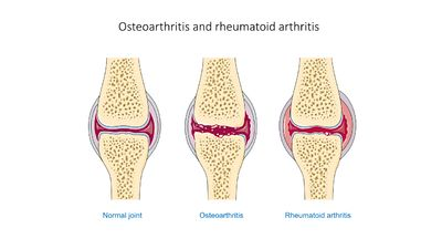 Osteoarthritis and rheumatoid arthritis - Normal joint Osteoarthr -- Smart-Servier.jpg