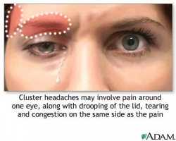 Cluster Headaches  Physiopedia. Microsoft Software Company My Website Builder. Event Planner Courses Online. Legal Timekeeping And Billing Software. Starting Salary For Engineers. Monroe Community College Financial Aid. Horizon Sports Management New Volvos For 2014. Free Mobile Phone Internet Char Steakhouse Nj. Best Schools In El Paso Antioch Middle School