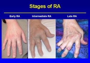 Rheumatoid Arthritis - Physiopedia