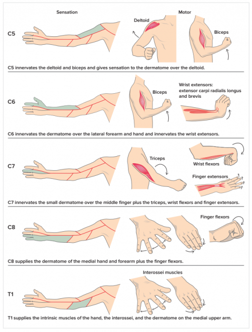 persistent pain model