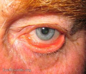 Ectropion eye photo.jpg