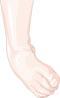 Ankle sprain.png