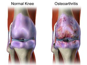 arthritis arthrosis kenőcskezelés
