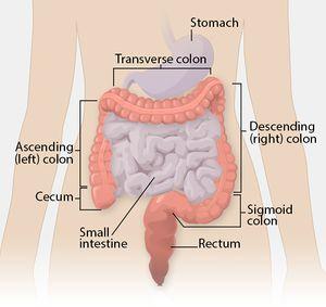 rectal cancer urinary retention cancer endometrial papanicolau