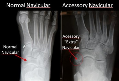 Accessory Navicular Bone Physiopedia The accessory navicular (os navicularum or os tibiale externum) is an extra bone or piece of cartilage located on the innter side of the foot just above the. accessory navicular bone physiopedia