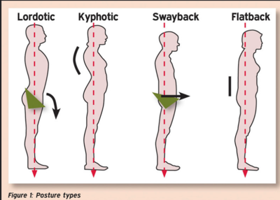 Posture Types.png