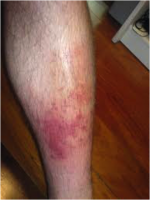 Cellulitis.png