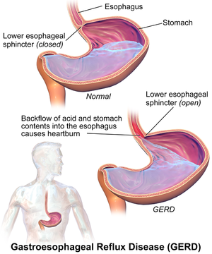 Gastroesophageal Reflux Disease Physiopedia