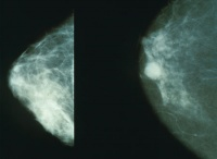 Mammograms showing a normal breast (left) and a cancerous breast (right)