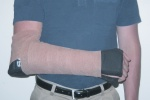 Sugar Tong Splint. Image used with permission of SAM Medical