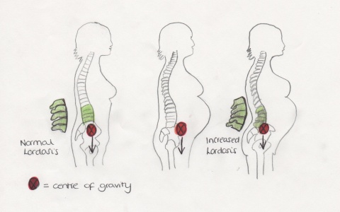 Increased lordosis in pregnancy due to increased anterior load.