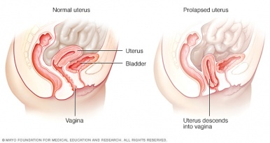 Pelvic floor dysfunction a patient guide physiopedia ccuart Image collections