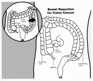 Colorectal Cancer Physiopedia