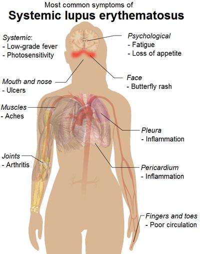de ce articulația cotului doare cum se tratează